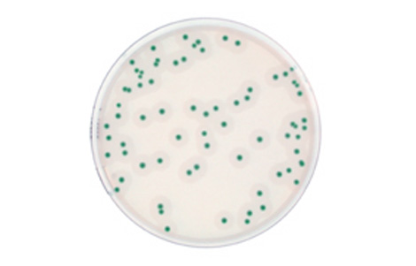 AL (Agar Listeria according to Ottaviani and Agosti Medium)