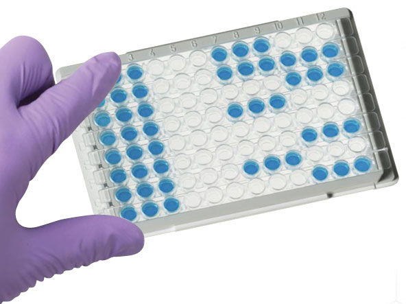 ELISA plate with positive and negative controls and samples