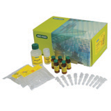 ProteoMiner™ Protein Enrichment Large-Capacity Kit