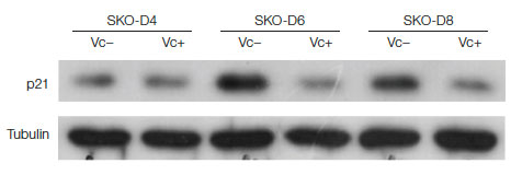 Western blot for p21