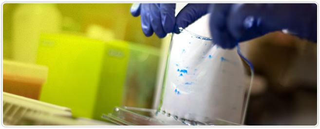 Picture of 2-D electrophoresis gel