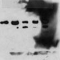 A blot with a blotchy background – Western Blot Doctor - Background Issues