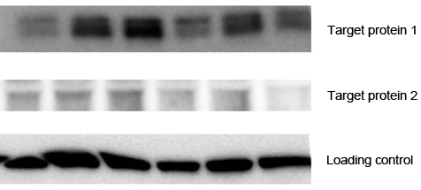 Western blot with saturated levels of control proteins – Western Blotting Doctor - Loading Control Issues