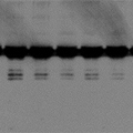 A blot with signal saturation – Western Blot Doctor - Signal Saturation Issues