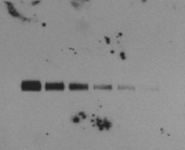 A blot with a speckled background – Western Blot Doctor - Background Issues