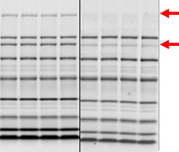 An under-transferred blot – Western Blot Doctor - Protein Transfer Issues