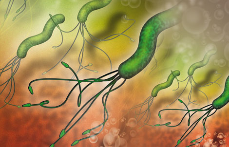 an overview of helicobacter pylori Helicobacter pylori infection - etiology, pathophysiology, symptoms, signs, diagnosis & prognosis from the msd manuals - medical professional version.