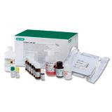 Platelia CMV IgM