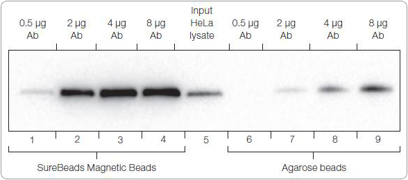 Comparison of immunoprecipitation (IP) performance of SureBeads magnetic beads and agarose beads