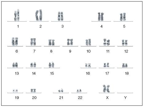 幹細胞研究 染色体分析