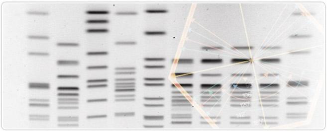 Pulsed Field Gel Electrophoresis Lsr Bio Rad