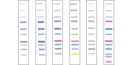 Recombinant Protein Ladders
