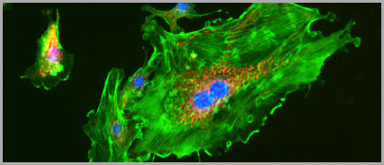 Mitochondria stained with MitoTracker Red CMXRos, F-actin stained with Alexa Fluor 488 Phalloidin, and nuclei stained with DAPI in BPAE cells.